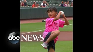 10-year-old girl who was born without hands threw the first pitch at a baseball game