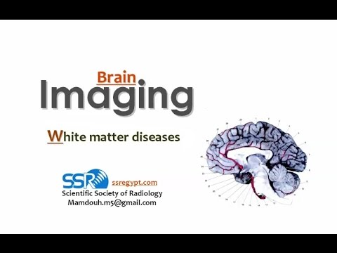 Imaging of White matter I - Prof Dr. Mamdouh Mahfouz (In Arabic)