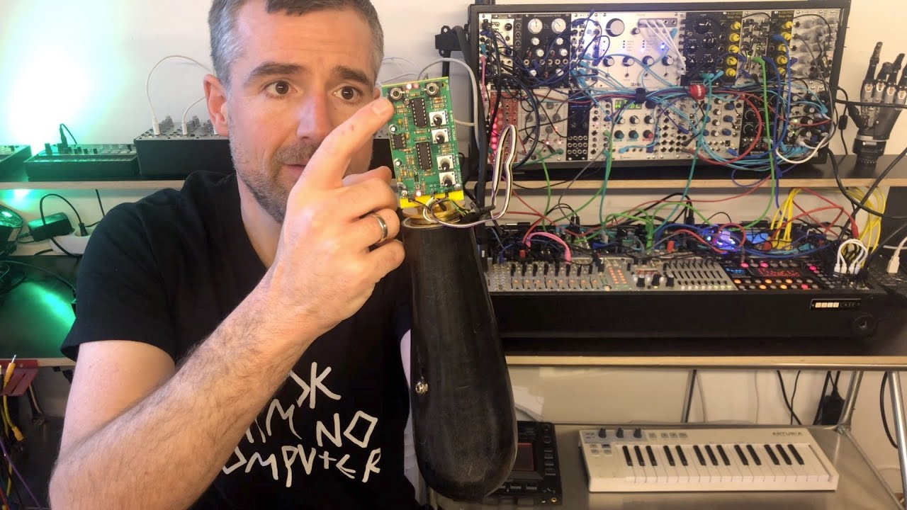 EDM musician Bertolt Meyer explains how he hacked his arm prosthesis to control his modular synth.