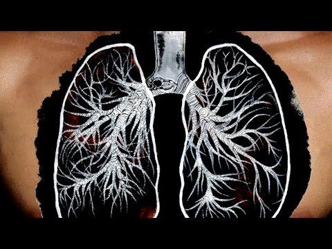 Хроническая обструктивная болезнь легких. Школа здоровья 15/11/2014 GuberniaTV