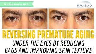 Reversing Premature Aging Under the Eyes By Reducing Eye Bags and Improving Fine Lines