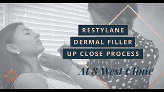 Non-Surgical Chin Augmentation with Restylane Dermal Filler at 8 West Clinic