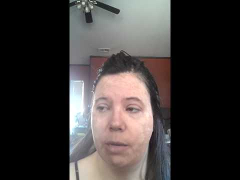 Platinum skin care products and peel