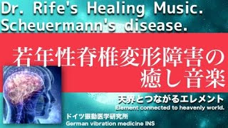 🔴ドイツ振動医学によるシェーアーマン病編|Scheuermann Disease by German Oscillatory Medicine.