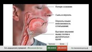 Анафилаксия особенности заболевания и лечение