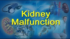 Kidney Malfunction Causes, Stages And Symptoms