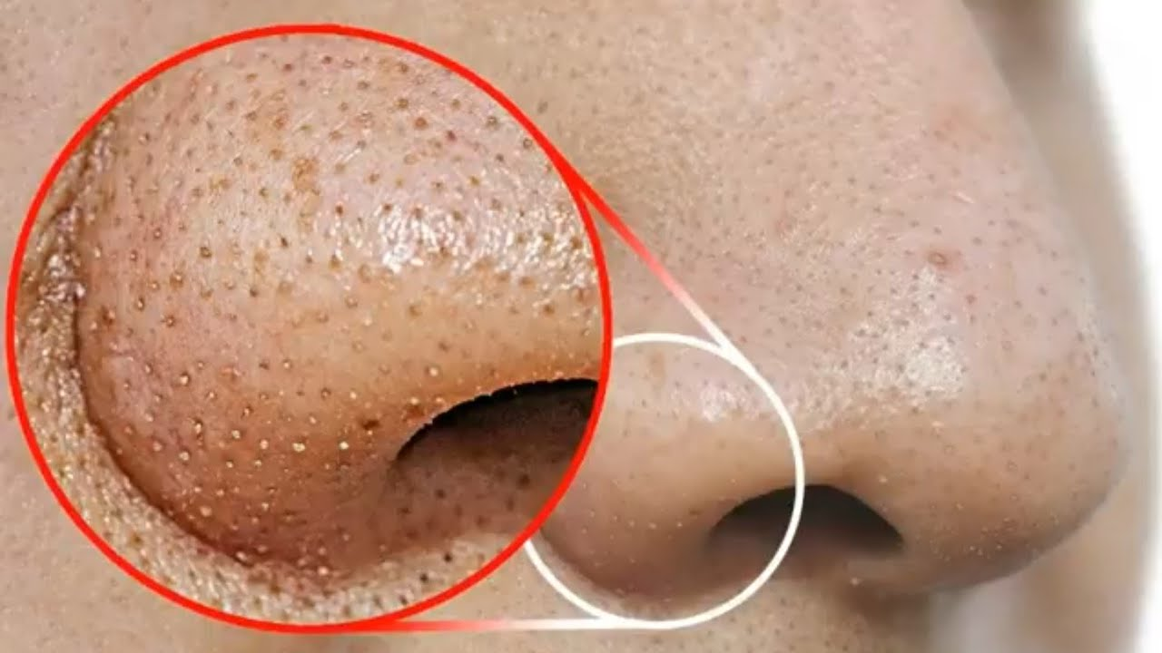How to remove blackheads from nose, Benefits of activated