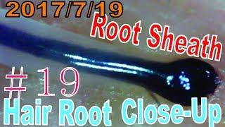 Hair Root / Root Sheath Close Up #19【 No Loss Hair Root Sheath】