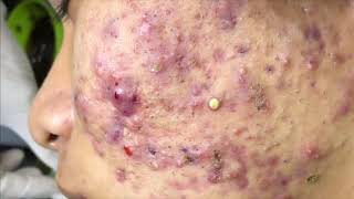 Satisfying Blackheads Removal, Acne Treatment Video with Sleep & Relaxing Music // ASMR 33
