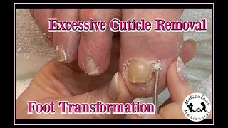 👣 Pedicure Tutorial: Reverse Foot Pain: Callus Removal: Foot Massage 👣👍