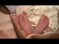 Reduce Your Risk of an Unnecessary C-Section   Consumer Reports