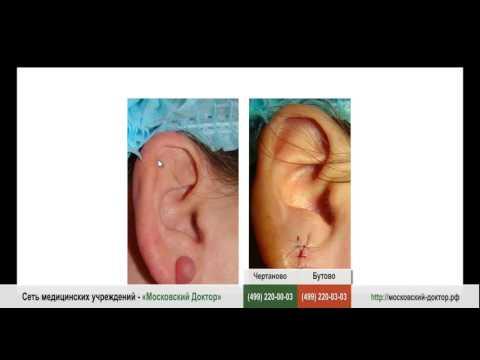 Опухла и болит мочка уха
