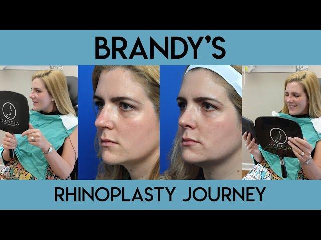 Brandy's Rhinoplasty Journey