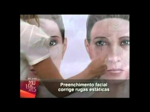 Dra. Isabel Martinez - Preenchimento Facial