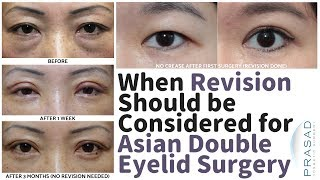 Healing for Asian Double Eyelid Surgery, and When Revision can be Considered