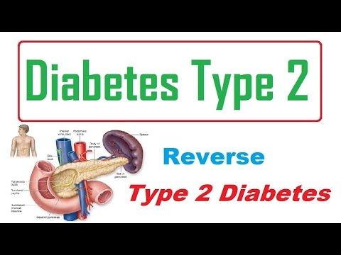 Reverse Type 2 Diabetes || How To Reverse Type 2 Diabetes Naturally