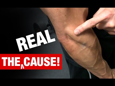 the-truth-about-tennis-elbow-(what-really-causes-it!)