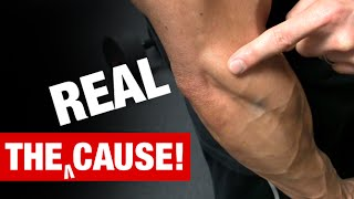 The Truth About Tennis Elbow (WHAT REALLY CAUSES IT!)