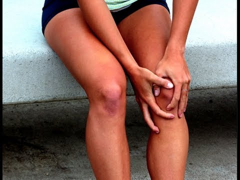 #1 Cause of Knee Pain: Chondromalacia patella or Runner's Knee