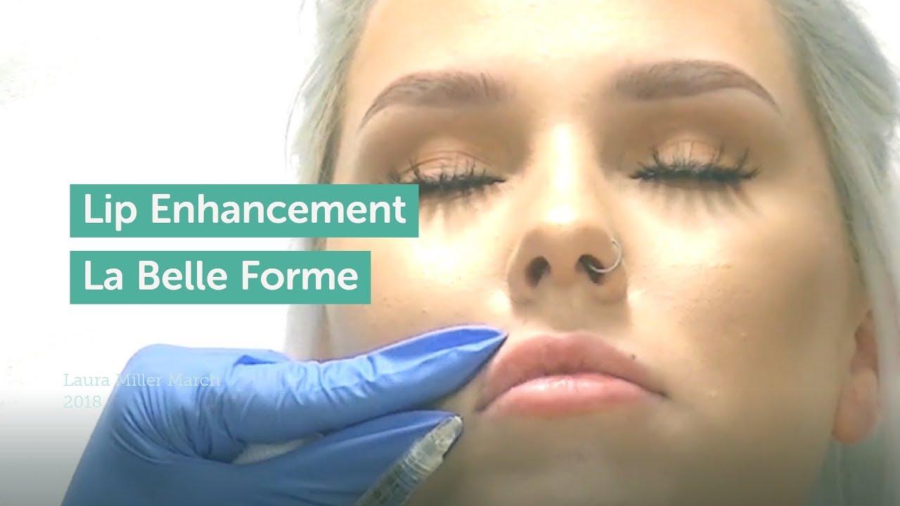 Dermal Fillers | Hyaluronic Acid Face Fillers UK - La Belle