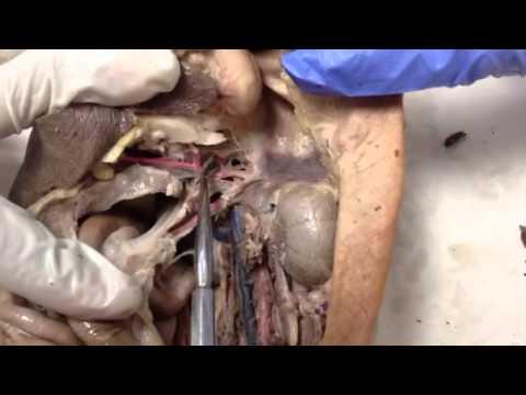 Cat Dissection Abdominal Aorta, Celiac, Hepatic, Gastric, S