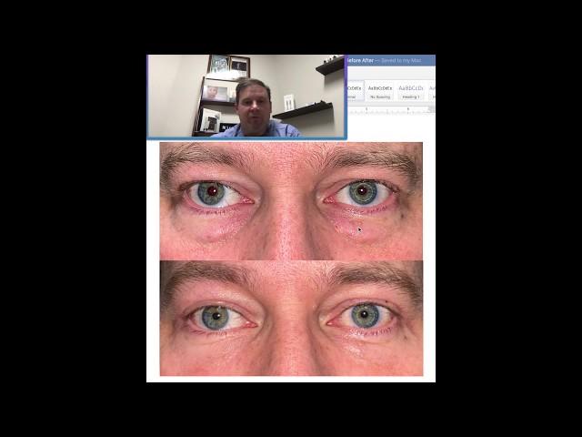 Dr. John Burroughs Upper Lower Blepharoplasty