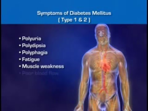 Diabetes Mellitus - Signs Of Diabetes, Diabetes Symptoms and Diabetes Pathophysiology