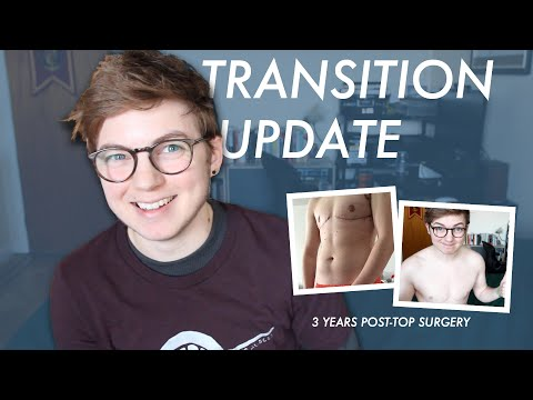 Transition Update | 3 Years Post-Top, Almost 4 Years on T