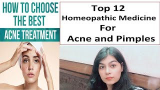 Top 12 Homeopathic Medicine for Acne and Pimples | Highly Informative Must Watch Video !!