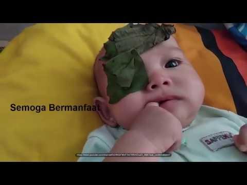 cara-mengatasi-sakit-mata-belekan-pada-bayi-dan-balita