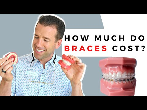 How Much Do Braces Cost? | Braces | Dr. Nate