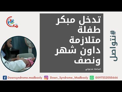 طفلة متلازمة داون شهر ونصف للابنة ريم أسامة مدبولي Down Syndrome Youtube