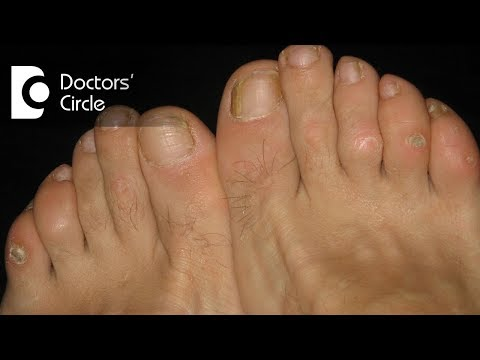 What causes itching, scaly lesions in webs of finger and toes?  – Dr. Sudheendra Udbalker