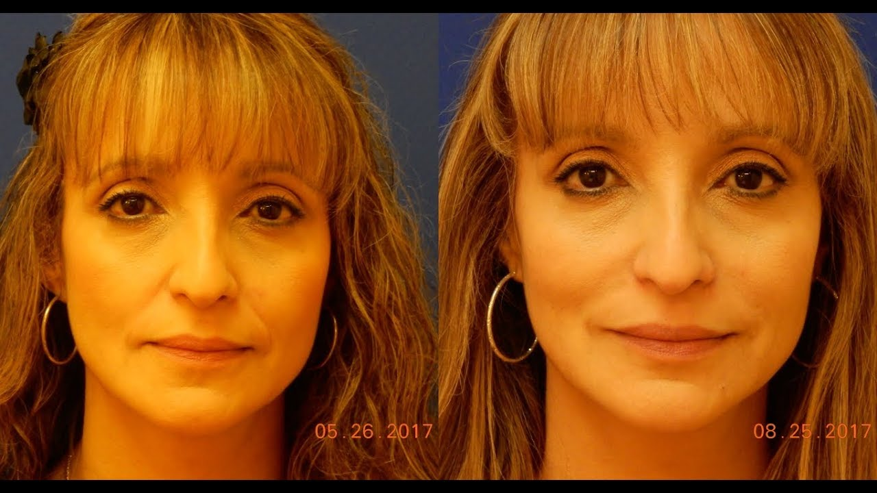 Expert Dermal Filler Injection - Nasolabial Folds NLF - Juvederm Vollure XC