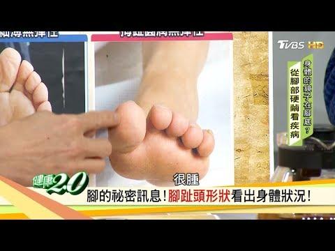 趕快看看你的腳「硬繭」長在這裡要當心!健康2.0