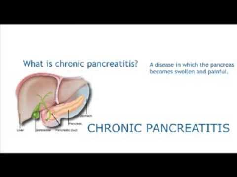 Chronic Pancreatitis | Diseases of the Pancreas | MUSC DDC