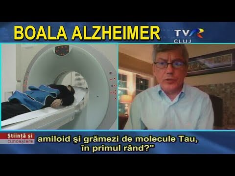 ADEVARURI ASCUNSE PUBLICULUI Ep.2 Boala Alzheimer from YouTube · Duration:  48 minutes 52 seconds