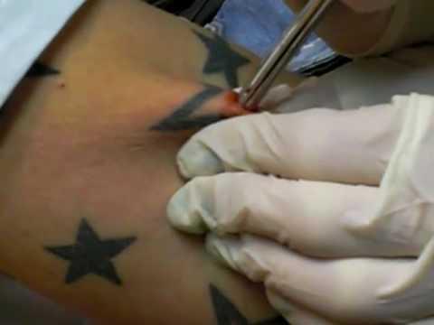 Dermal anchor brust