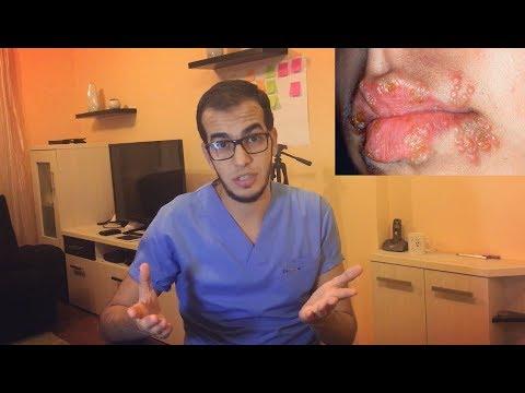 أمراض جلديه شائعه تظهر حول الفهم وعلاجها