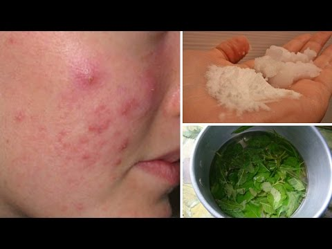 hqdefault - Home Remedy For Acne Under Skin