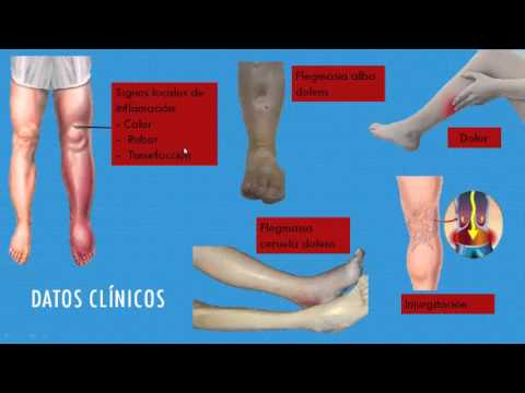 Rossiya el centro de la cirugía vascular