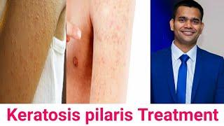 Keratosis Pilaris Treatment Update | Bumps On Skin Chicken Skin | Vivienne Fung.