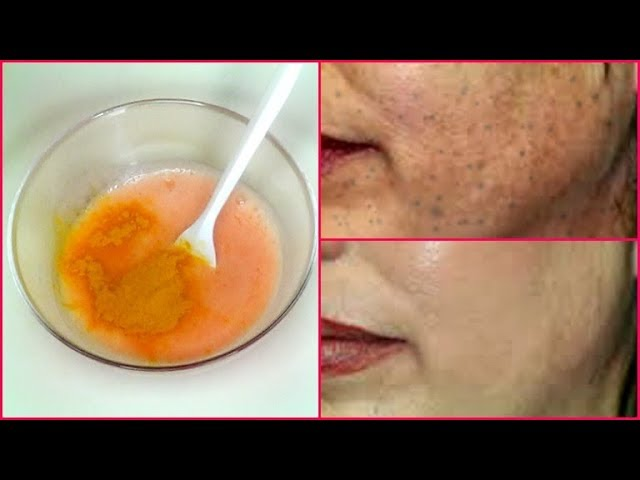 RUB THIS ON YOUR SKIN REMOVE DARK SPOTS IN 7 DAYS, GET RID OF UNEVEN SKIN TONE  Khichi Beauty