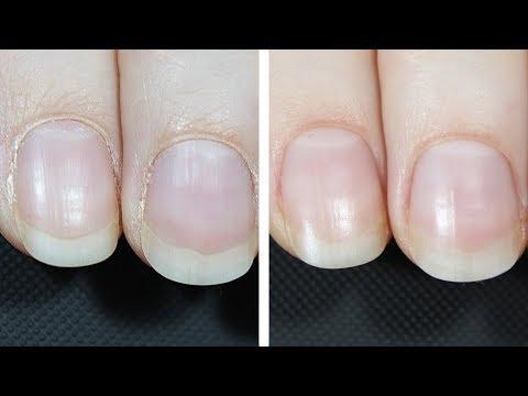 Обработка ногтей в домашних условиях