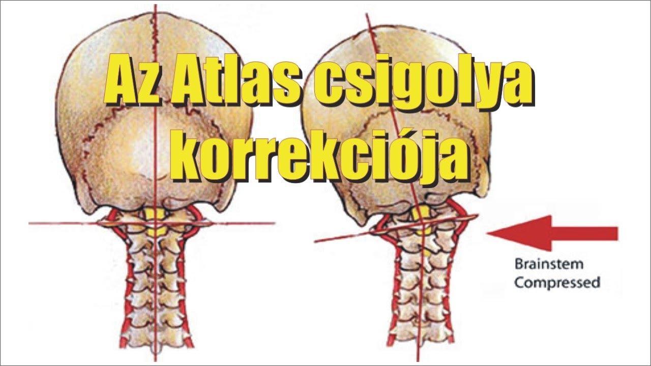 látási problémák a nyaki gerinc miatt szenilis rövidlátás