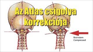 visszérműtétek ismételt működése