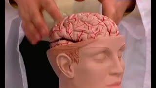 Как обеспечить комплексную профилактику инсульта?