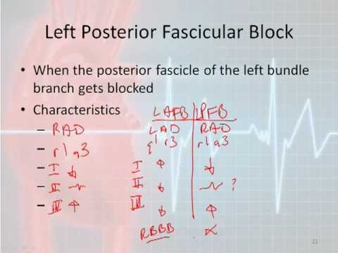 12 Lead Interpretation Part 4-2: Bundle Branch and Fascicular Blocks