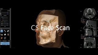 The New CS 9600 CBCT Scanner