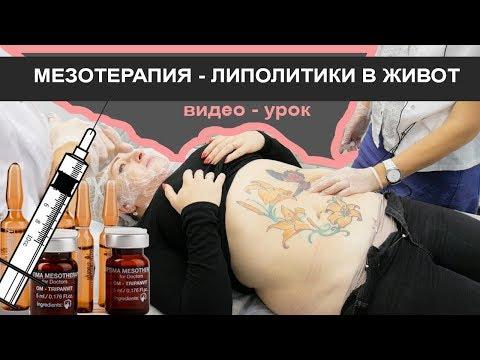 Мезотерапия в живот (ЛИПОЛИТИКИ)  - практика видео урок